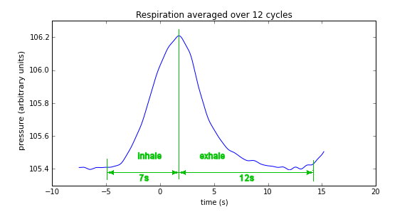 Respiration waveform