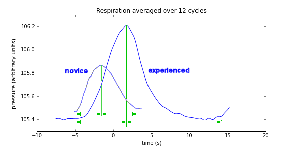 comparison of respiration waveforms